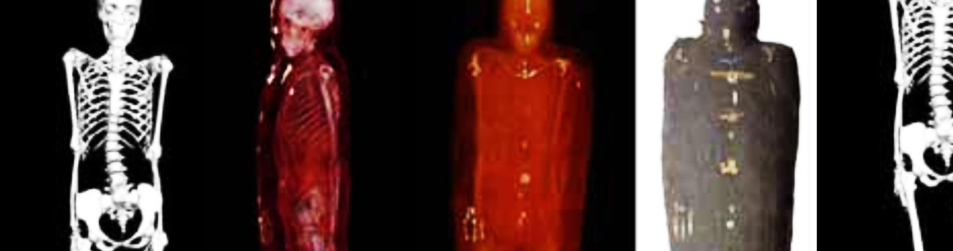 Digital biomedical imaging reveals the Rhind mummy's skeleton.